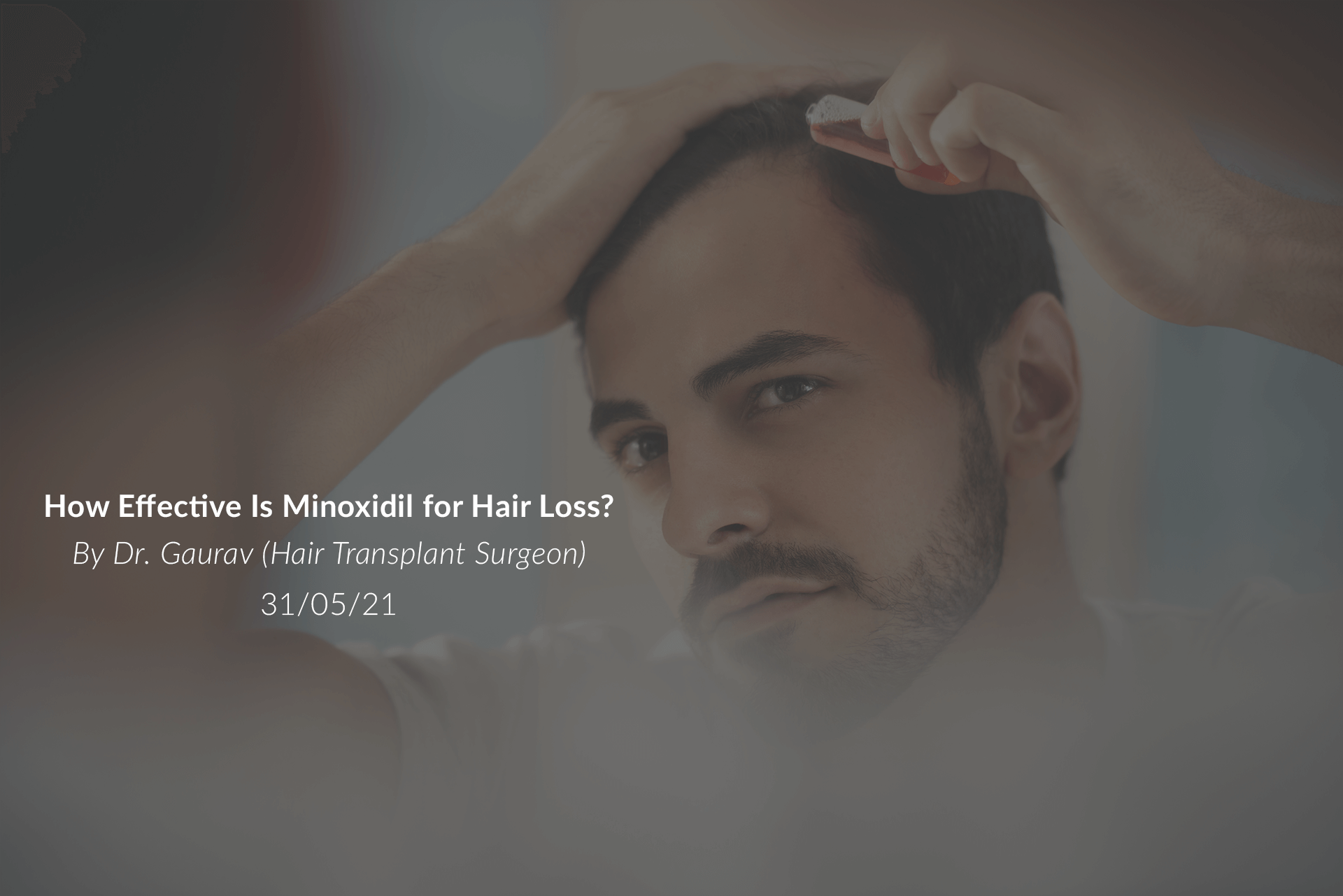 How Effective Is Minoxidil for Hair Loss?