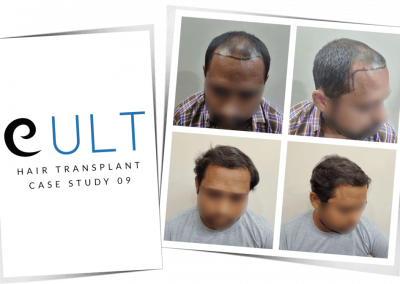 Hair Transplant Results at Cult Aesthetics 09