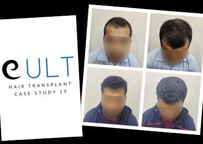 Hair Transplant Results at Cult Aesthetics 19