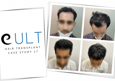 Hair Transplant Results at Cult Aesthetics 17