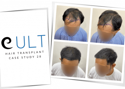 Hair Transplant Results at Cult Aesthetics 28