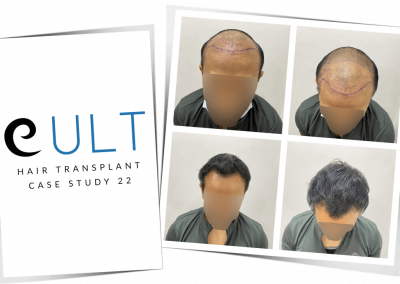 Hair Transplant Results at Cult Aesthetics 22
