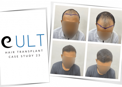 Hair Transplant Results at Cult Aesthetics 23
