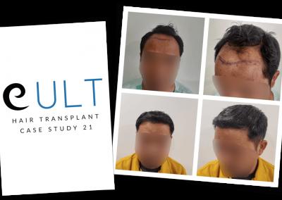 Hair Transplant Results at Cult Aesthetics 21