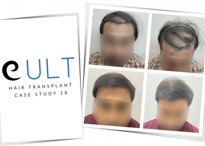 Hair Transplant Results at Cult Aesthetics 18