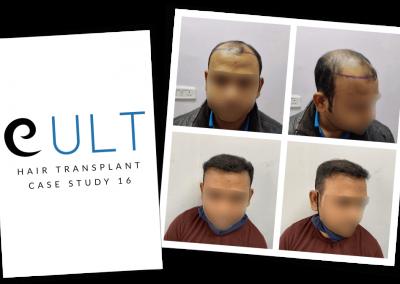 Hair Transplant Results at Cult Aesthetics 16