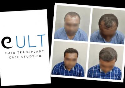 Hair Transplant Results at Cult Aesthetics 08