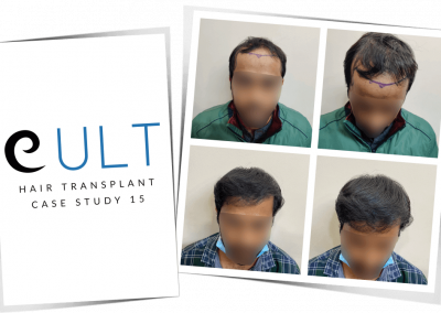 Hair Transplant Results at Cult Aesthetics 15