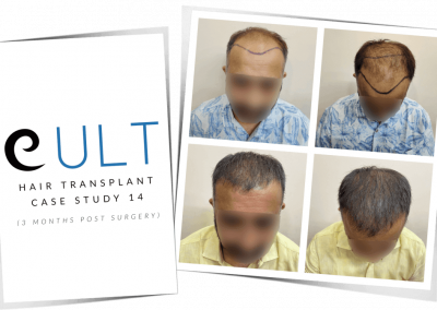 Hair Transplant Results at Cult Aesthetics 14
