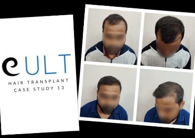 Hair Transplant Results at Cult Aesthetics 13