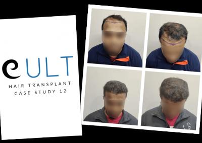 Hair Transplant Results at Cult Aesthetics 12