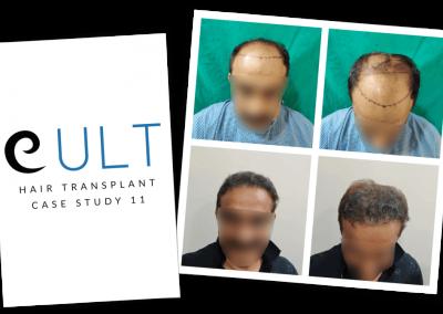 Hair Transplant Results at Cult Aesthetics 11