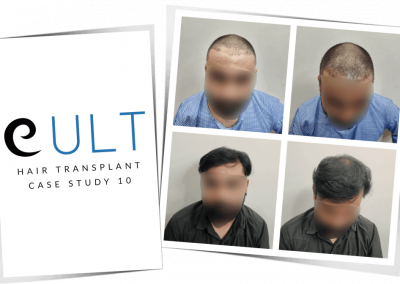 Hair Transplant Results at Cult Aesthetics 10
