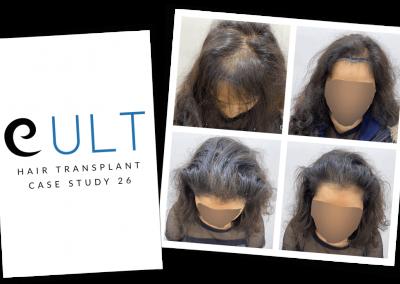Hair Transplant Results at Cult Aesthetics 26