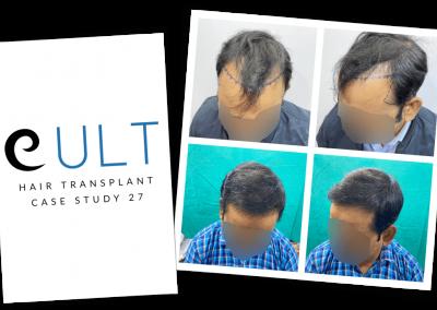 Hair Transplant Results at Cult Aesthetics 27