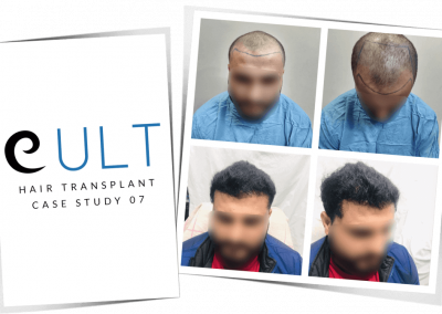 Hair Transplant Results at Cult Aesthetics 07