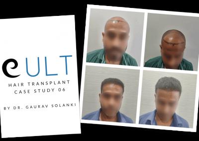 Hair Transplant Results at Cult Aesthetics 06
