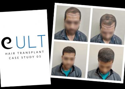 Hair Transplant Results at Cult Aesthetics 05