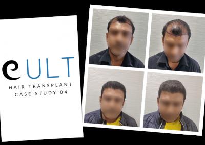 Hair Transplant Results at Cult Aesthetics 04