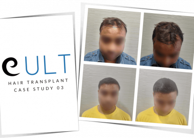 Hair Transplant Results at Cult Aesthetics 03
