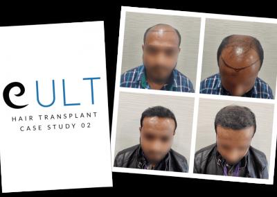 Hair Transplant Results at Cult Aesthetics 02