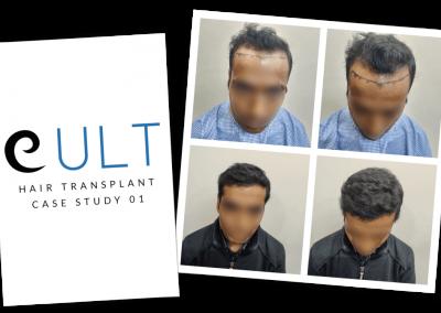 Hair Transplant Results at Cult Aesthetics 01