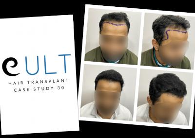 Hair Transplant Results at Cult Aesthetics 30