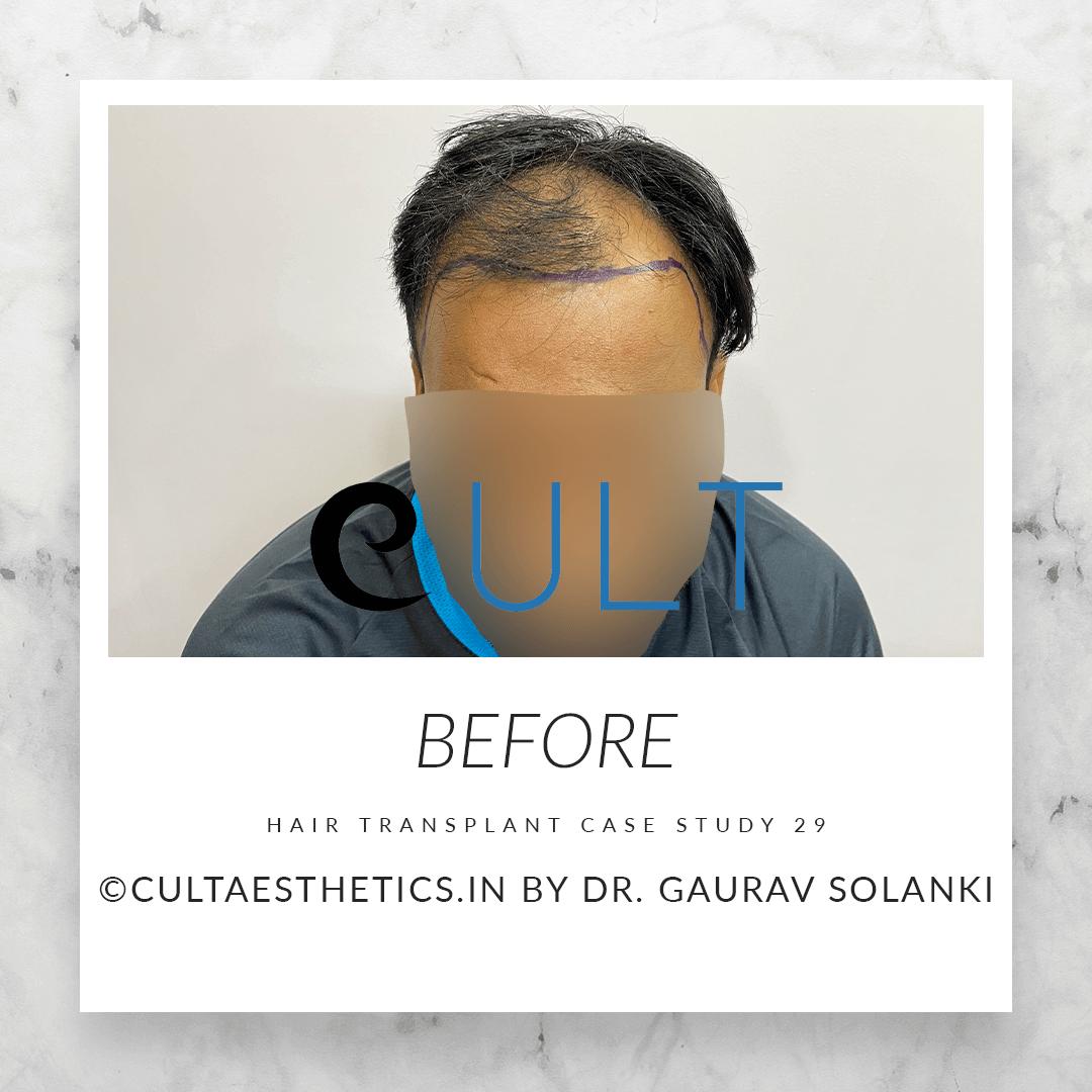 Hair Transplant Case Study 29