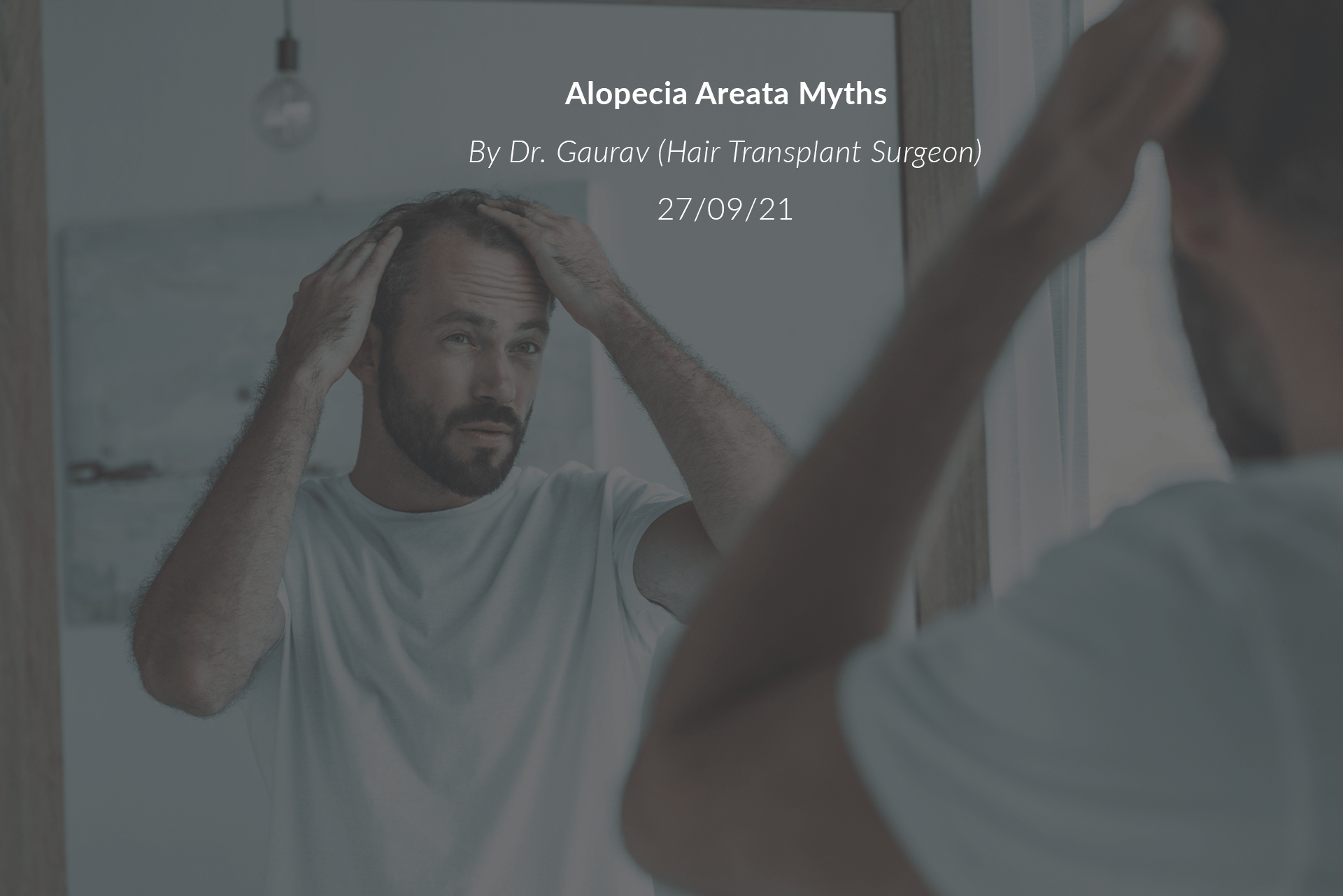 Alopecia Areata Myths