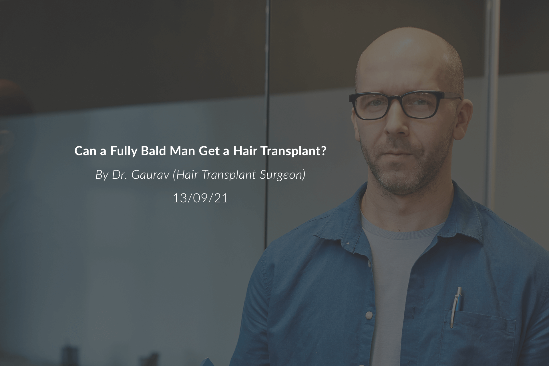 Can a Fully Bald Man Get a Hair Transplant?