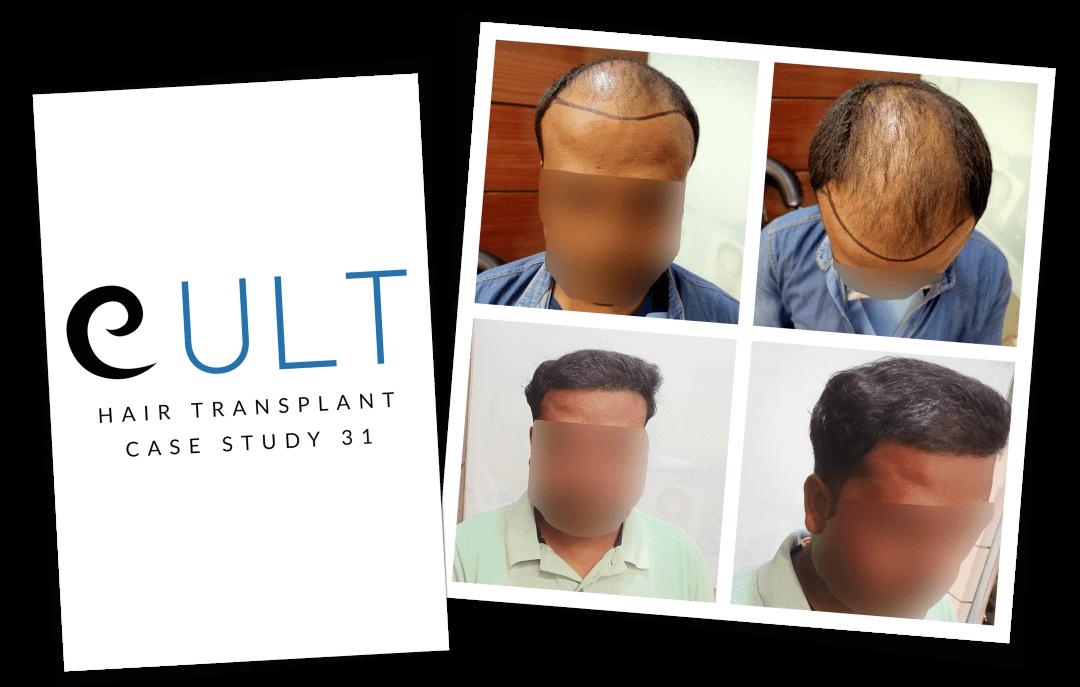 Hair Transplant Results at Cult Aesthetics 31
