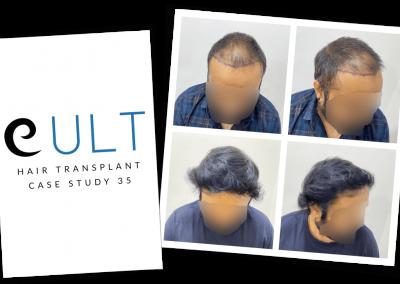 Hair Transplant Results at Cult Aesthetics 35