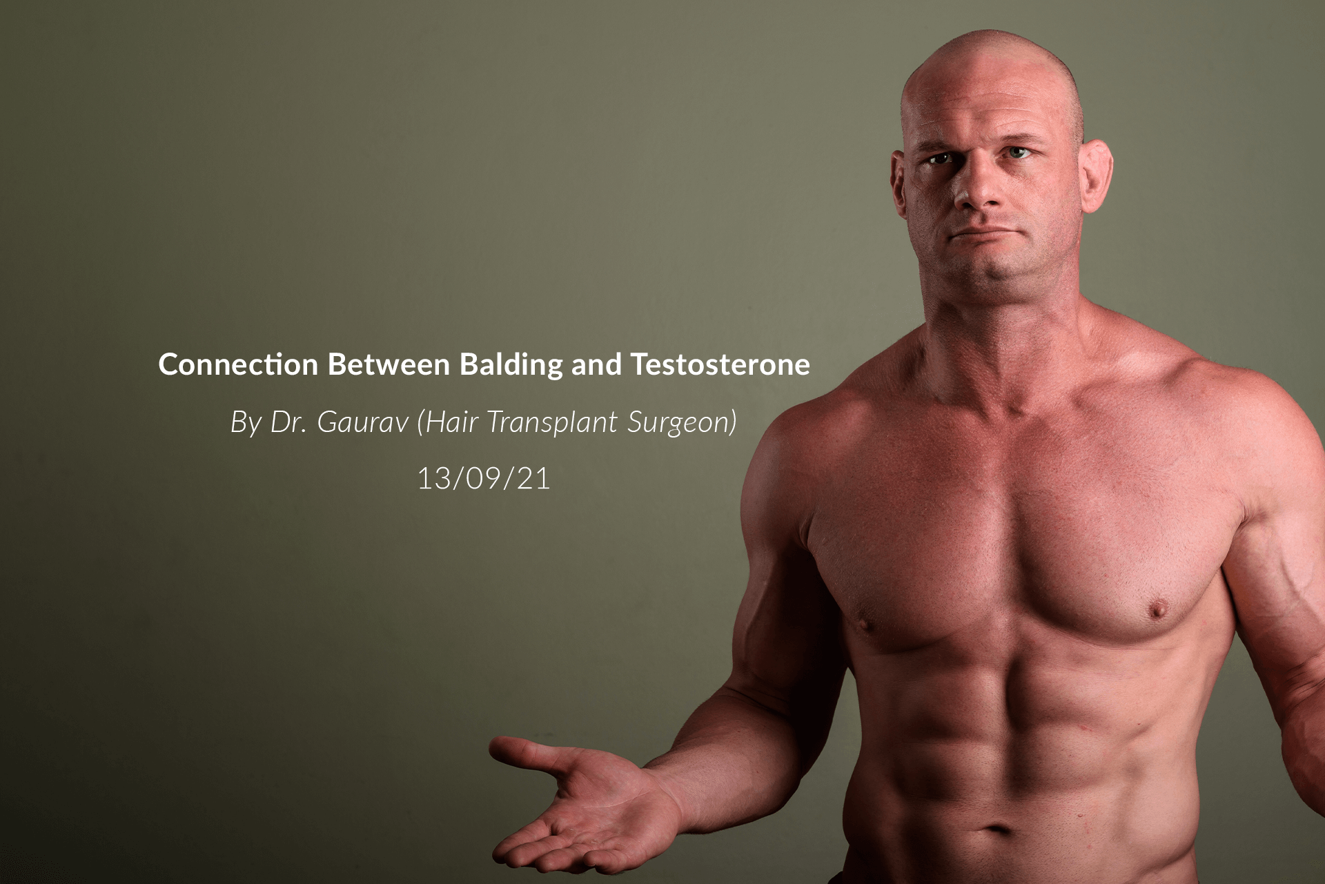 Connection Between Balding and Testosterone