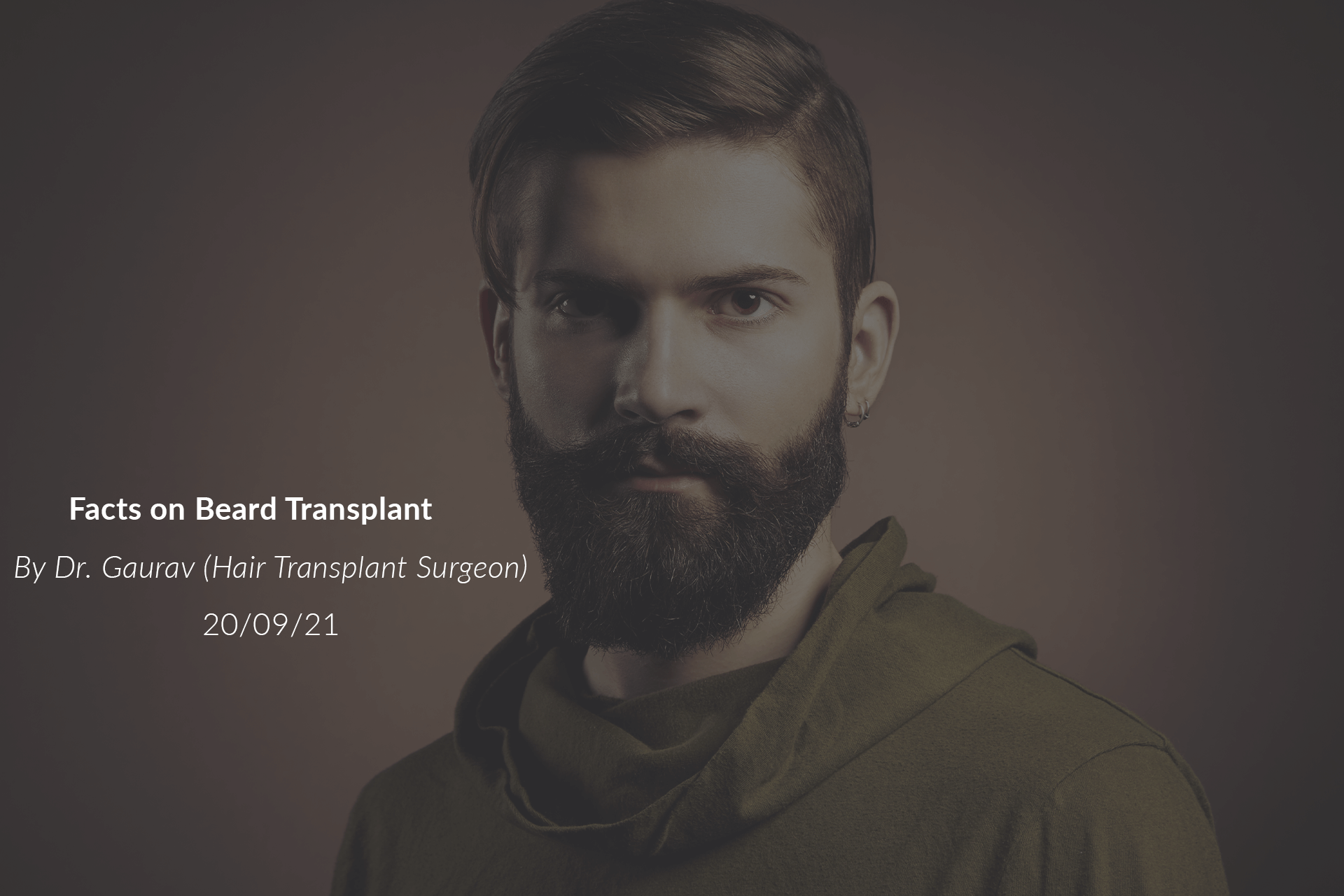Facts on Beard Transplant