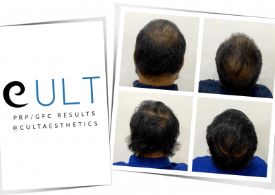 GFC Treatment Results at Cult Aesthetics