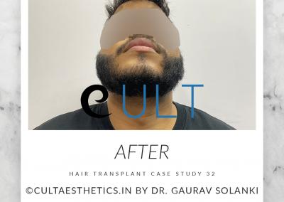 Hair Transplant Results at Cult Aesthetics 32