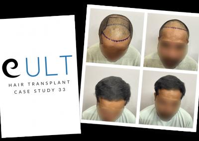 Hair Transplant Results at Cult Aesthetics 33