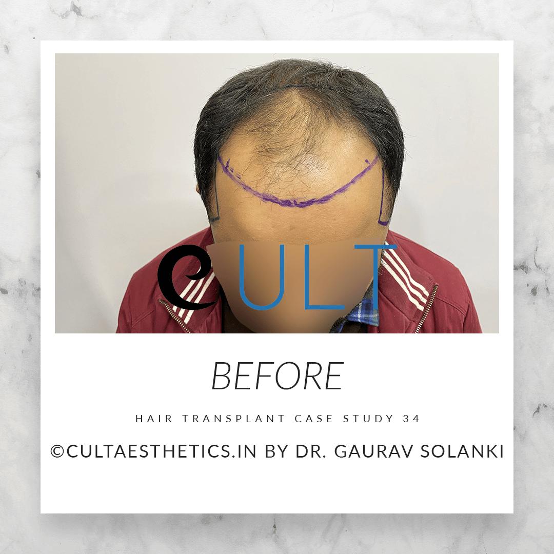 Hair Transplant Results at Cult Aesthetics 34