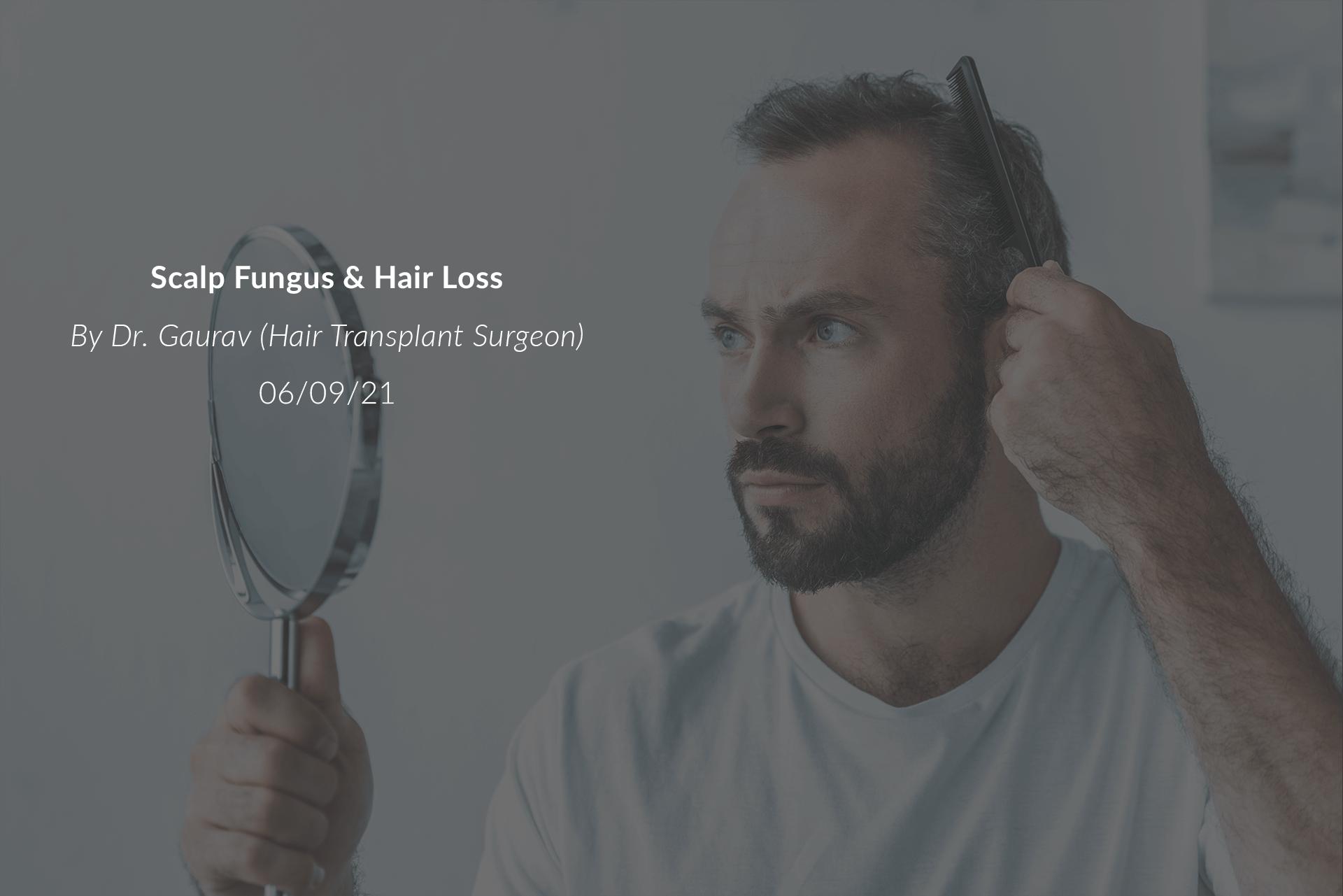 Scalp Fungus & Hair Loss