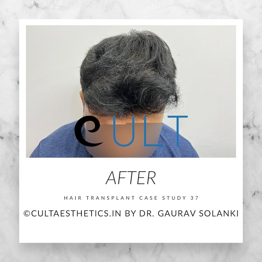 Hair Transplant Results at Cult Aesthetics 37