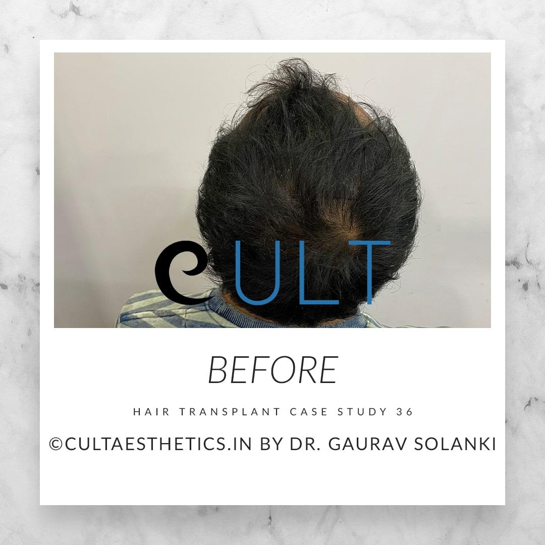 Hair Transplant Results at Cult Aesthetics 36