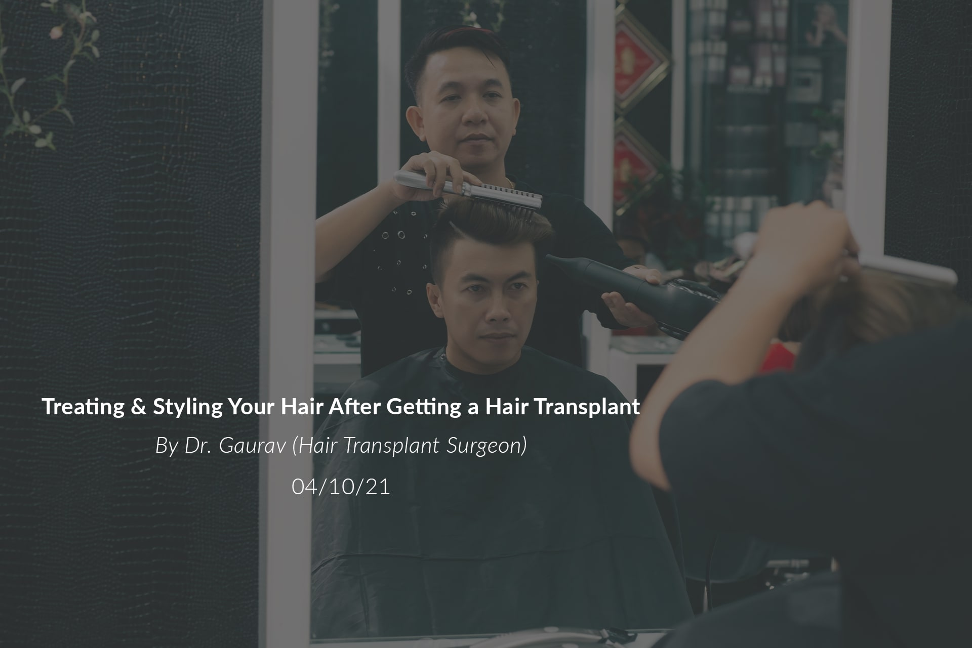 Treating & Styling Your Hair After Getting a Hair Transplant